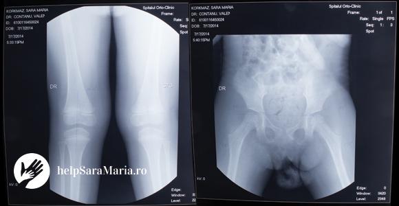 radiografie_sara