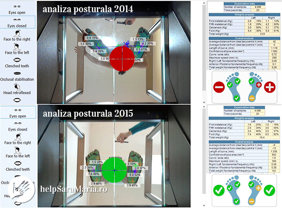 analiza_posturala_posturotest_helpsaramaria.ro
